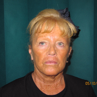 65-74 year old woman treated with Lower Face Lift after 3581637