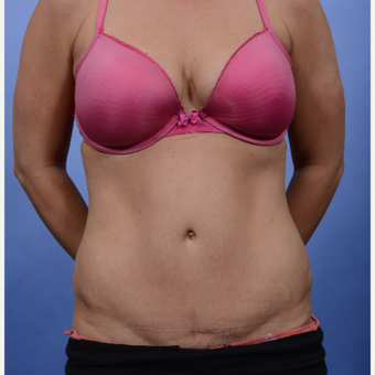 Tummy Tuck after 3052351