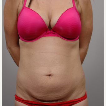 Tummy Tuck before 3052351