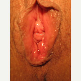 35-44 year old woman treated with Vaginoplasty before 3700529