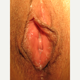 35-44 year old woman treated with Vaginoplasty after 3700529