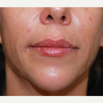 41 year old woman treated with Belotero for lip augmentation. after 3000833