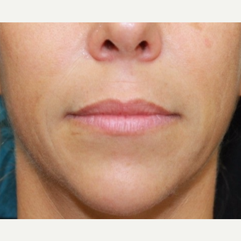 41 year old woman treated with Belotero for lip augmentation. before 3000833