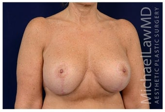 Breast Implants after 1517004
