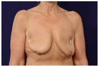 Breast Implants before 1517004