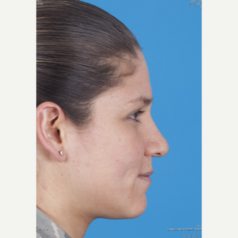 25-34 year old woman treated with Rhinoplasty before 3159504