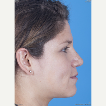 25-34 year old woman treated with Rhinoplasty after 3159504