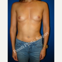 35-44 year old woman treated with Mentor Breast Implants before 3325575