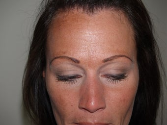 Eyebrow Transplantation before 339182