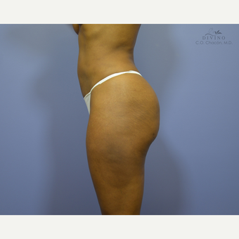 35-44 year old woman treated with Brazilian Butt Lift after 3386382