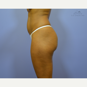35-44 year old woman treated with Brazilian Butt Lift before 3386382