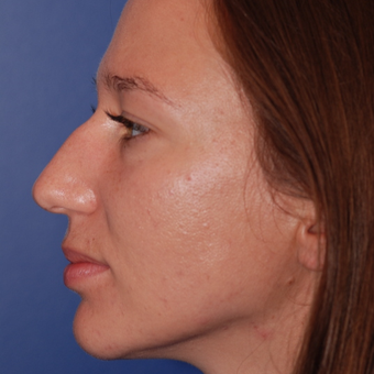 25-34 year old woman treated with Rhinoplasty before 3623998