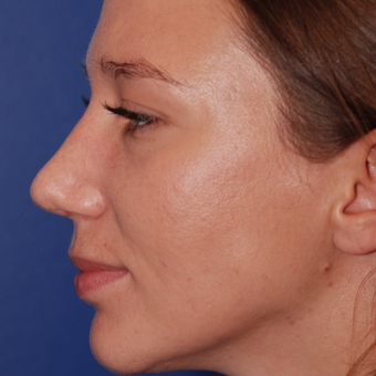 25-34 year old woman treated with Rhinoplasty after 3623998