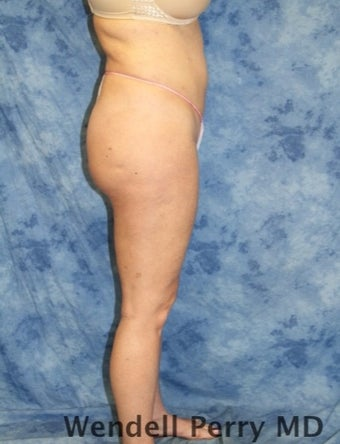 25-34 year old woman treated with Brazilian Butt Lift after 3360835