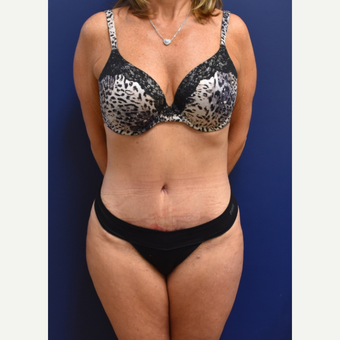 45-54 year old woman treated with Tummy Tuck after 3744544