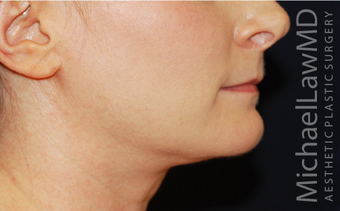 Chin Liposuction - Lower Facial Rejuvenation after 674078