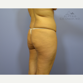 35-44 year old woman treated with Liposuction before 3421389