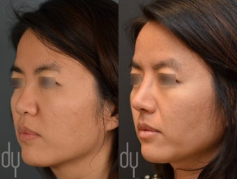 25-34 year old woman treated with Asian Rhinoplasty