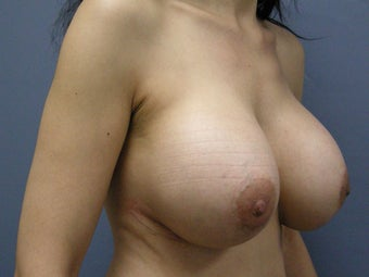 Breast Augmentation  747163