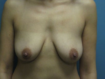 Breast Augmentation  before 747163