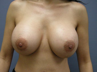Breast Augmentation  after 747163