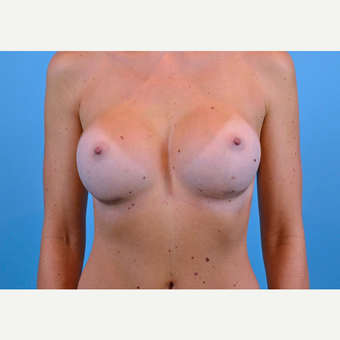 25-34 year old woman treated with Breast Implants after 3440030
