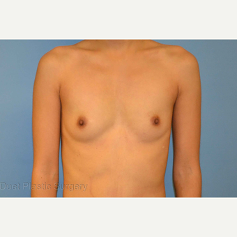 28 year old woman treated with saline breast Implants before 3125784