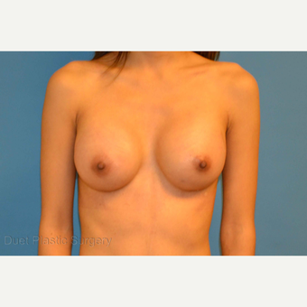 28 year old woman treated with saline breast Implants after 3125784