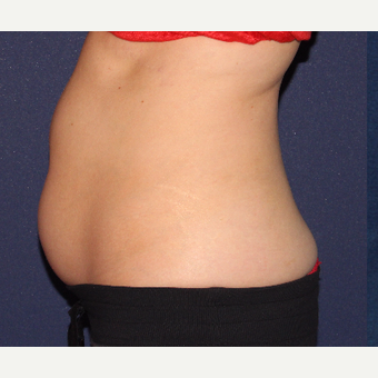 25-34 year old woman treated with CoolSculpting before 3138857