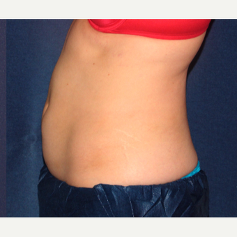 25-34 year old woman treated with CoolSculpting after 3138857