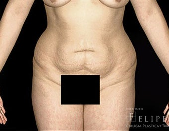 35-44 year old woman treated with Tummy Tuck before 3413374