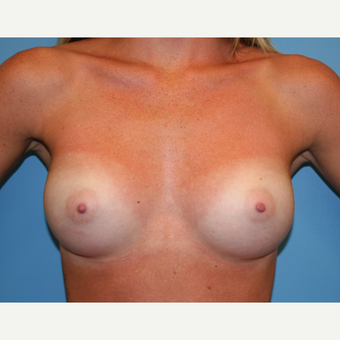 25 year old woman treated with Breast Augmentation after 3482856