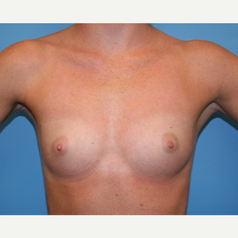 25 year old woman treated with Breast Augmentation before 3482856