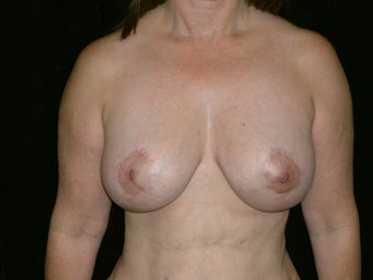 Breast Lift with Short Vertical Scar after 1050385