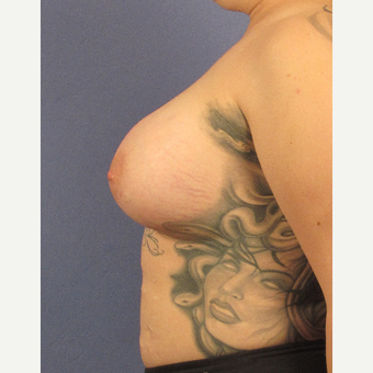25-34 year old woman treated with Breast Augmentation after 3106316