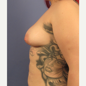 25-34 year old woman treated with Breast Augmentation before 3106316