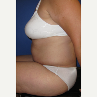 55-64 year old woman treated with Tummy Tuck after 3165572