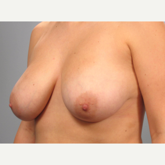25-34 year old woman treated with Breast Lift before 3453335