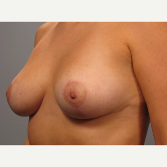 25-34 year old woman treated with Breast Lift after 3453335