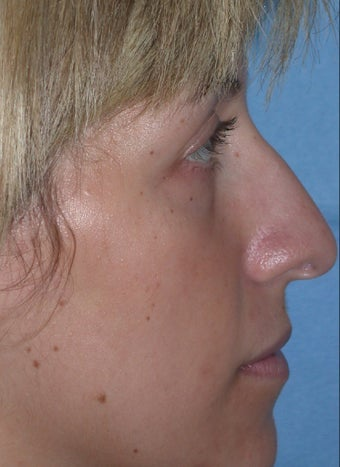Rhinoplasty before 611289