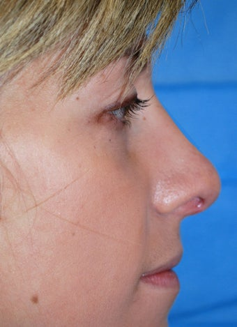 Rhinoplasty after 611289
