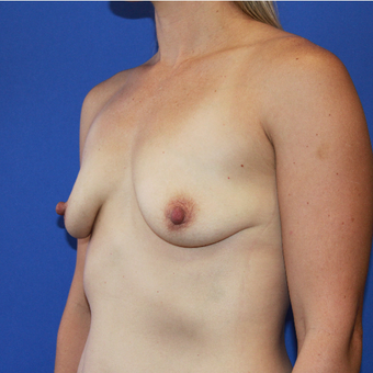 Transaxillary Subpectoral Breast Augmentation before 3487722