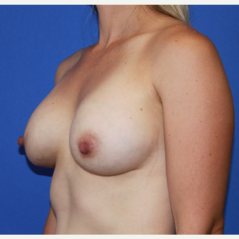 Transaxillary Subpectoral Breast Augmentation after 3487722