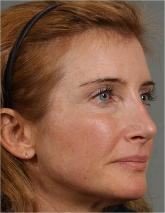 45 year old female with a nasal deformity after rhinoplasty with obstruction requesting revision surgery 1017721