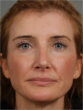 45 year old female with a nasal deformity after rhinoplasty with obstruction requesting revision surgery after 1017721