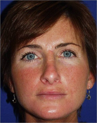 45 year old female with a nasal deformity after rhinoplasty with obstruction requesting revision surgery before 1017721