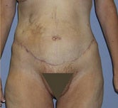 Extended abdominoplasty post gastric bypass after 1091380