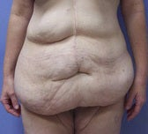 Extended abdominoplasty post gastric bypass before 1091380