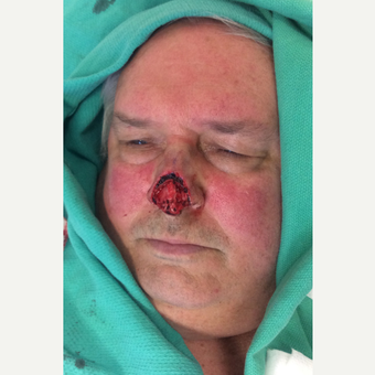 65-74 year old man treated with Facial Reconstructive Surgery before 3741550
