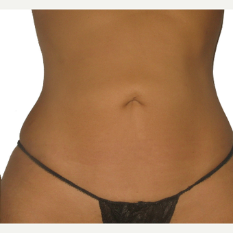 25-34 year old woman treated with Smart Lipo after 3634942